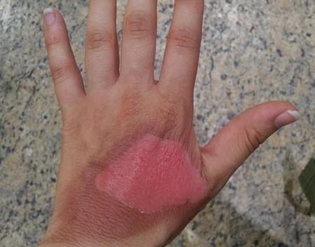 Çınar yaprağının yanık ve yanık yaralarına faydaları nelerdir